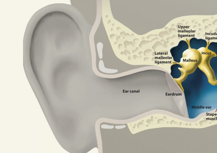 hearing-loss-treatment-toronto